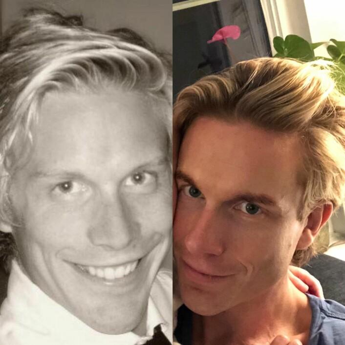 """Christoffer Hernæs sine bilder fra """"10 Year Challenge"""" -- da og nå."""
